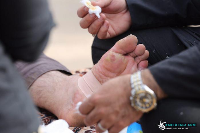 ماساژدرمانی در پیاده روی اربعین/ گزارش تصویری